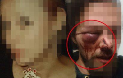"""Verzweifelte Suche: """"Meinem Freund wurde brutal ins Gesicht getreten"""""""