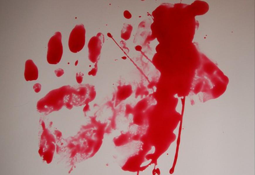 21-Jähriger tötet Schwangere (45) mit einer Machete