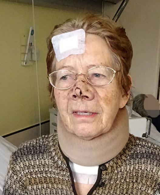 Räuber reißt Rentnerin (87) die Nase ab!