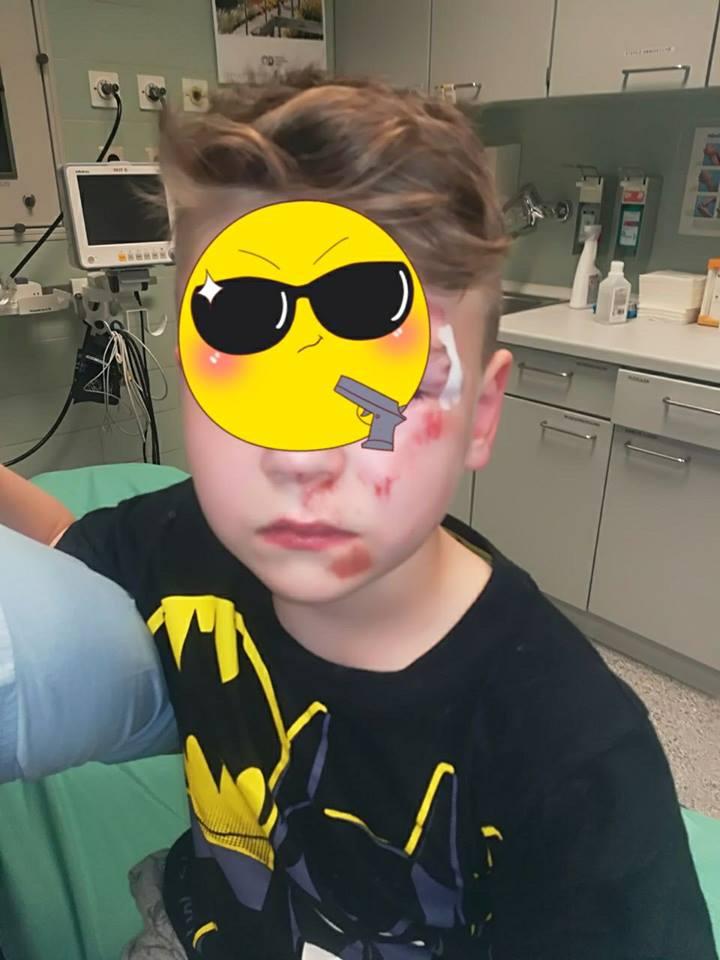 7- jähriger im Park brutal zusammen geschlagen